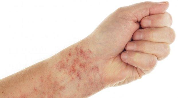 trombocitopenija simptomi
