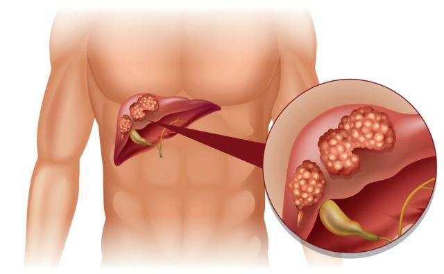 tumor jetre