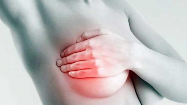 upala dojke mastitis