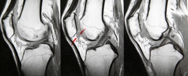 bol kolena sa prednje strane