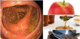 ciscenje creva prirodno