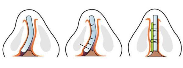 devijacija nosne pregrade