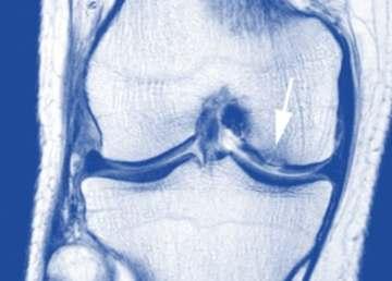 hrskavica kolena