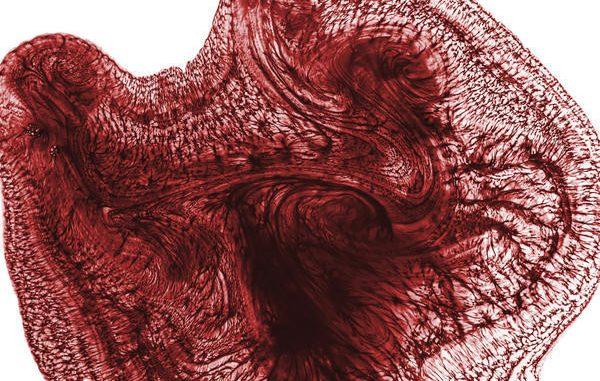 limfociti