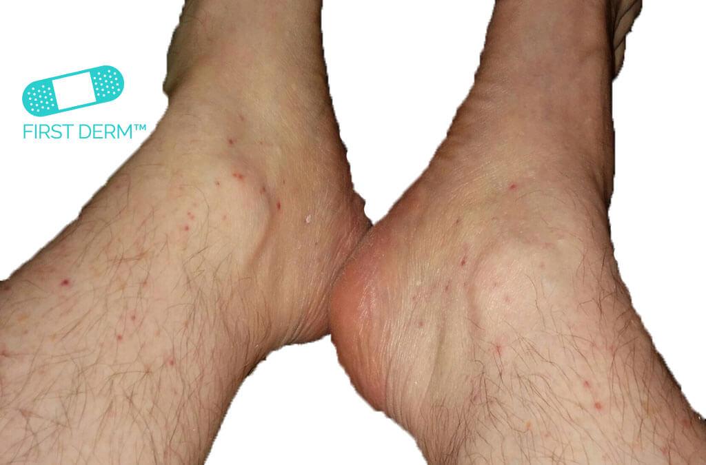 crvene tacke po nogama