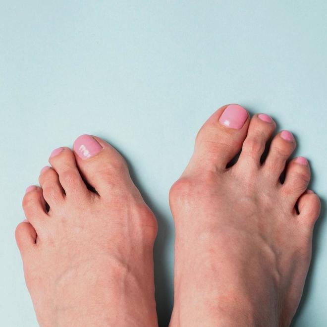 cukljevi na nogama