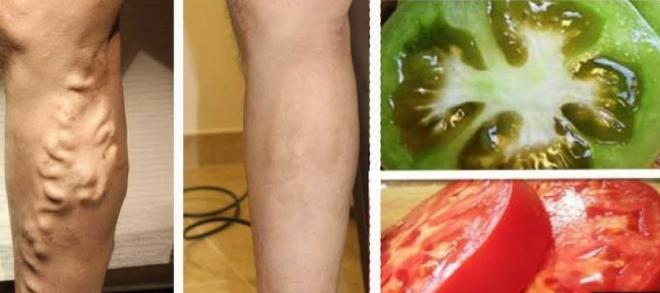 kako izleciti prosirene vene na nogama