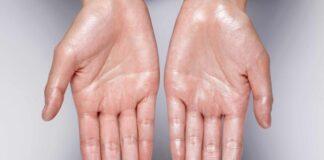 znojenje dlanova uzrok