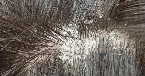 gljivice u kosi
