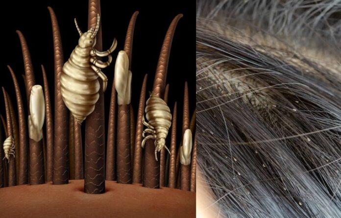 vaske u kosi