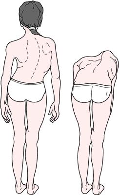 Dekstrokonveksna skolioza kičme