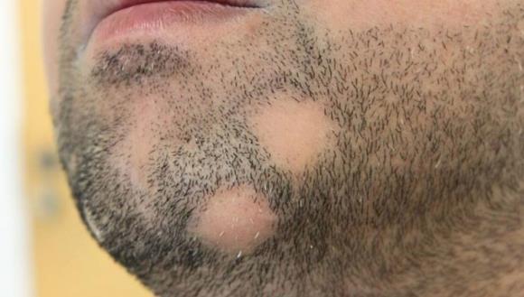 alopecija na bradi