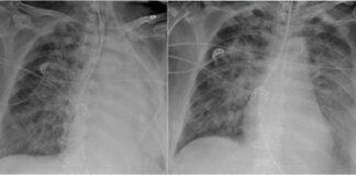 bronhopneumonija