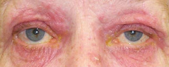 rozacea na ocima