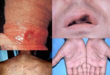 sifilis simptomi