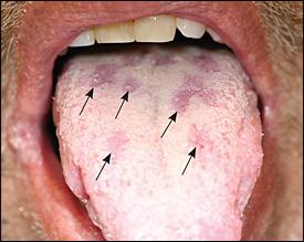 sifilis u ustima