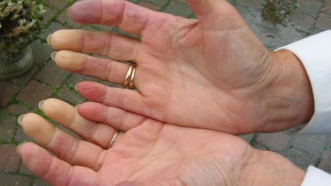 skleroderma slike