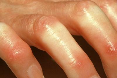 sklerodermija slike