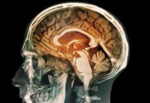 upala mozga simptomi